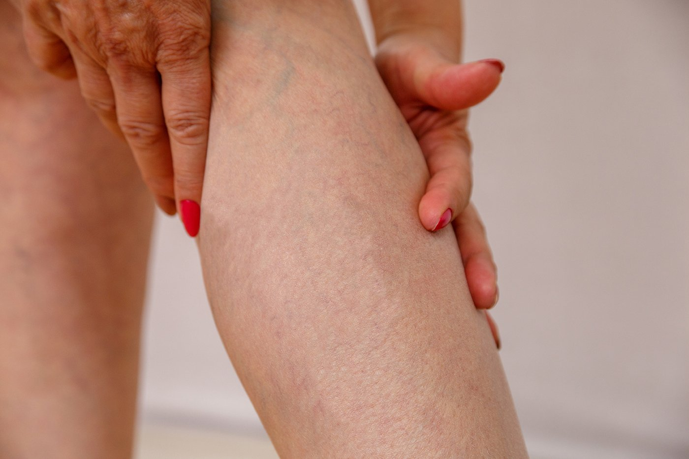 Elderly woman in white panties shows cellulite and varicose veins on a light isolated background. Concept for medicine and cosmetology.